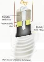 trasduttore ultrasonico